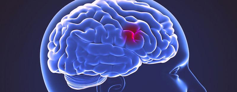 infarto cerebral como identificarlo