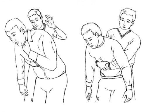 ¿Qué es la maniobra Heimlich?